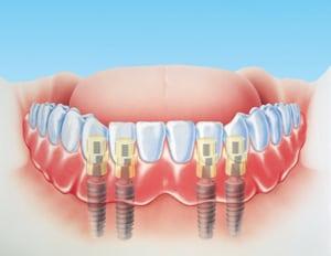 dental-implants-denture