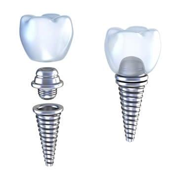 Dental Implant Screw
